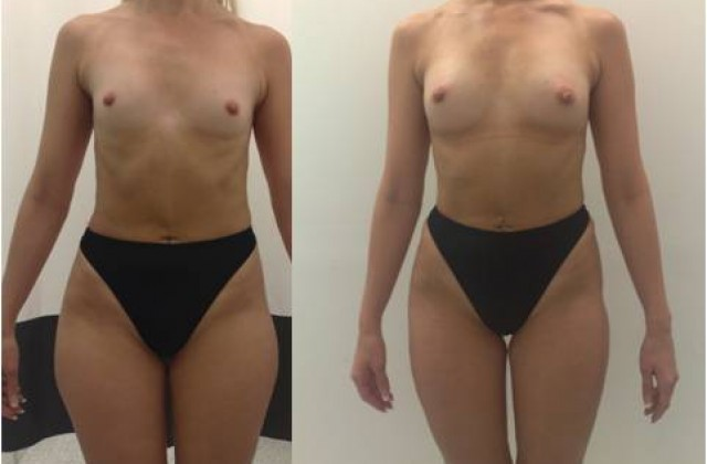 Fettsugning/Ridbyxlår & Fettransplantation/Bröst