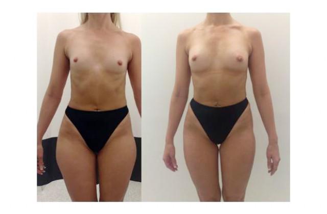 Bröstförstoring med eget fett, före- & efterbilder