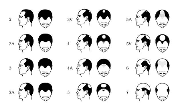 Manligt ärftligt håravfall