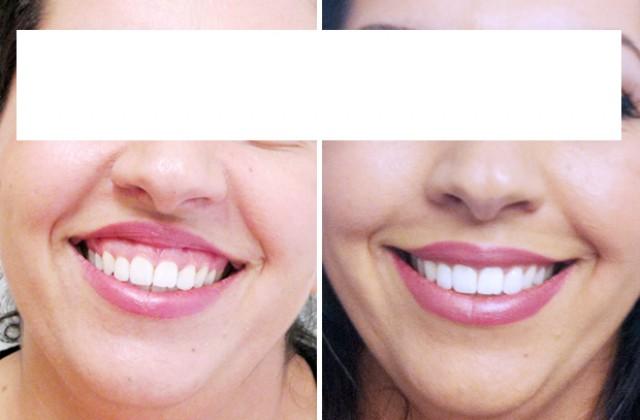 Gum Smile