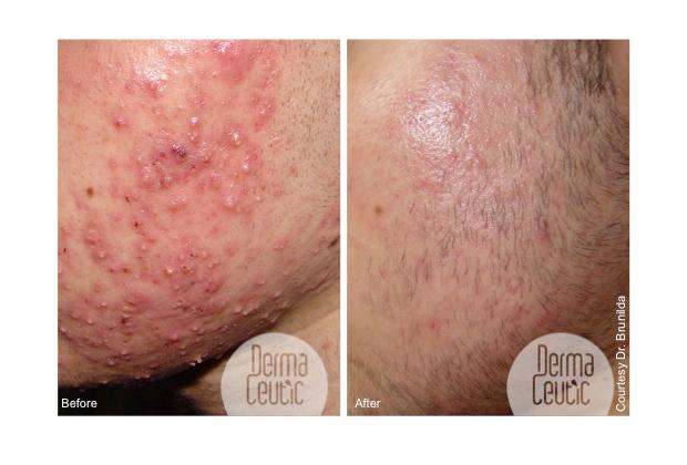 hudvård acne