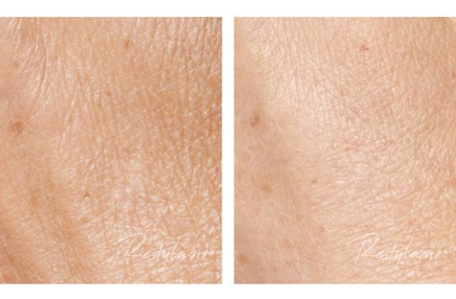 Skinbooster/Närbild