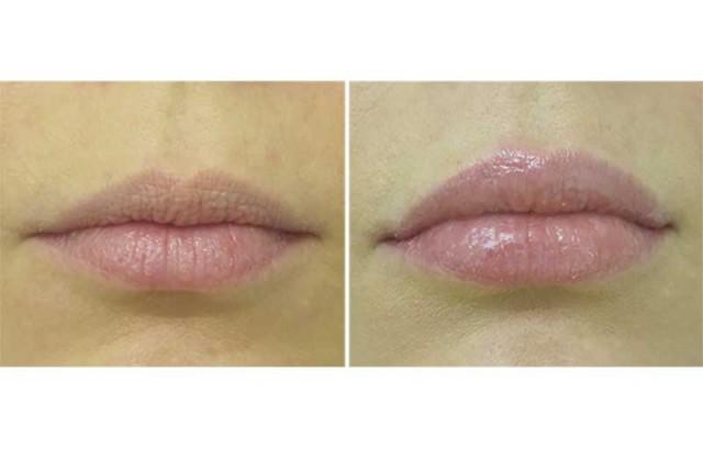 Före & efter 1 ml Emervel Lips