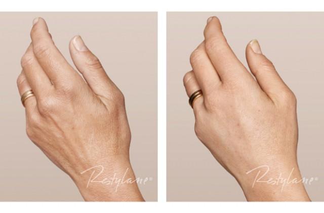 Hudföryngring hand
