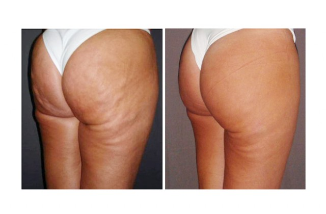 Carboxy Therapy/Celluliter