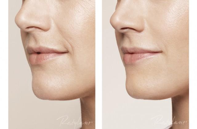 Skinbooster/Nasolabialveck/Mungipor