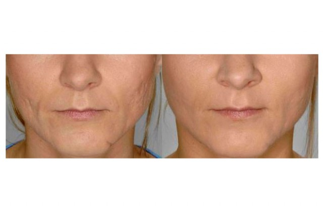 Fillers/Restylane