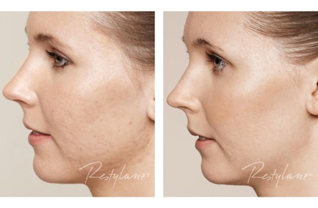 Skinbooster/Acneärr