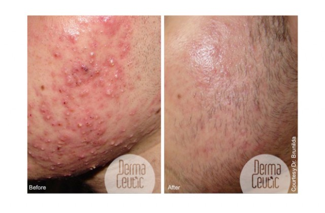 Kemisk Peeling/Acne
