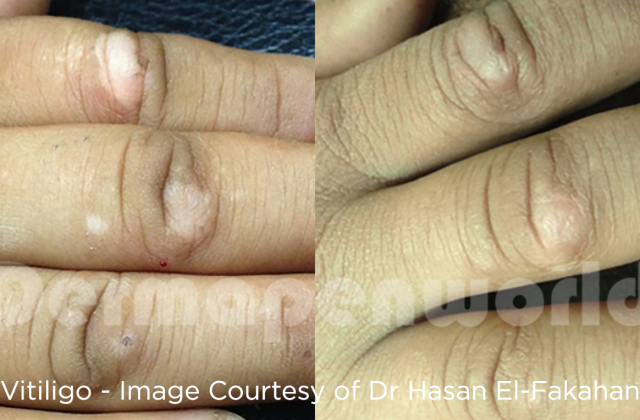 Behandling av vitiligo med Dermapen