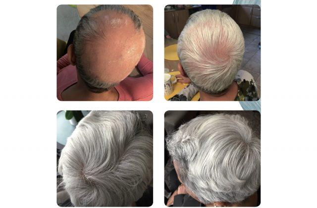 Alopecia areata behandlad med PRP