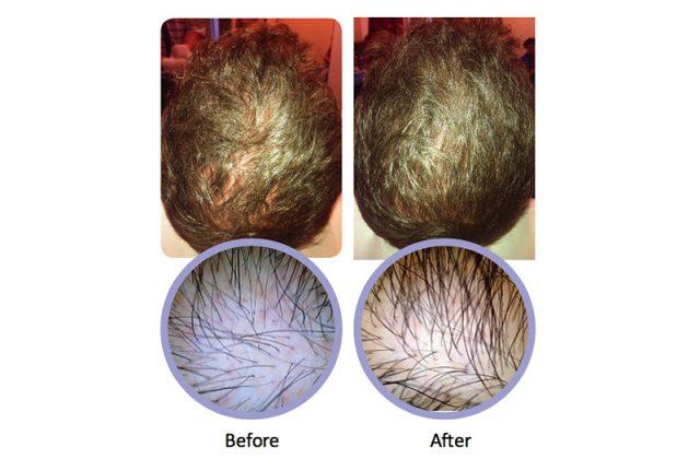 Ärftligt håravfall behandlat med PRP
